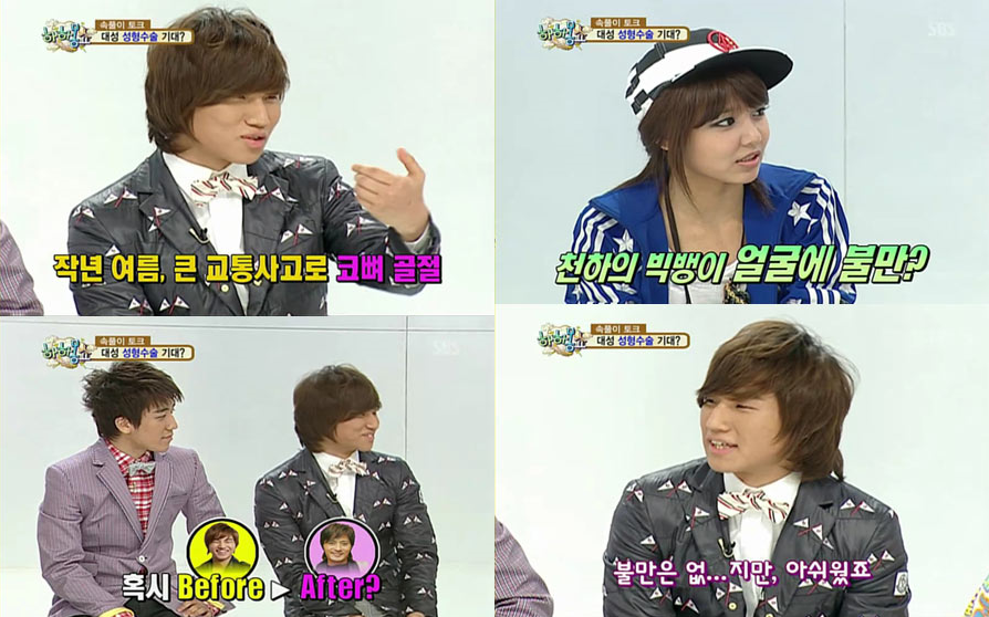 Daesung On Plastic Surgery I Thought I Would Become Like Jang