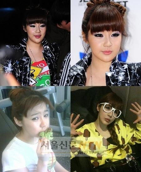 park bom before surgery. Girlgroup 2NE1 member Park Bom